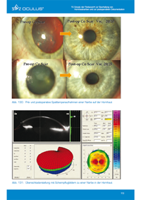 Using the Pentacam® for the assessment of corneal scars and postoperative documentation